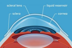 Sclera Lens Specialist in Houston