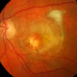 Myopia Macular Degeneration Treatment