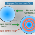 Myopia Control Soft Contact Lenses
