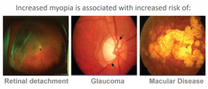 Myopia Glaucoma Doctor Houston